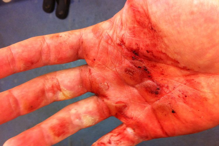 Rowers hand 01
